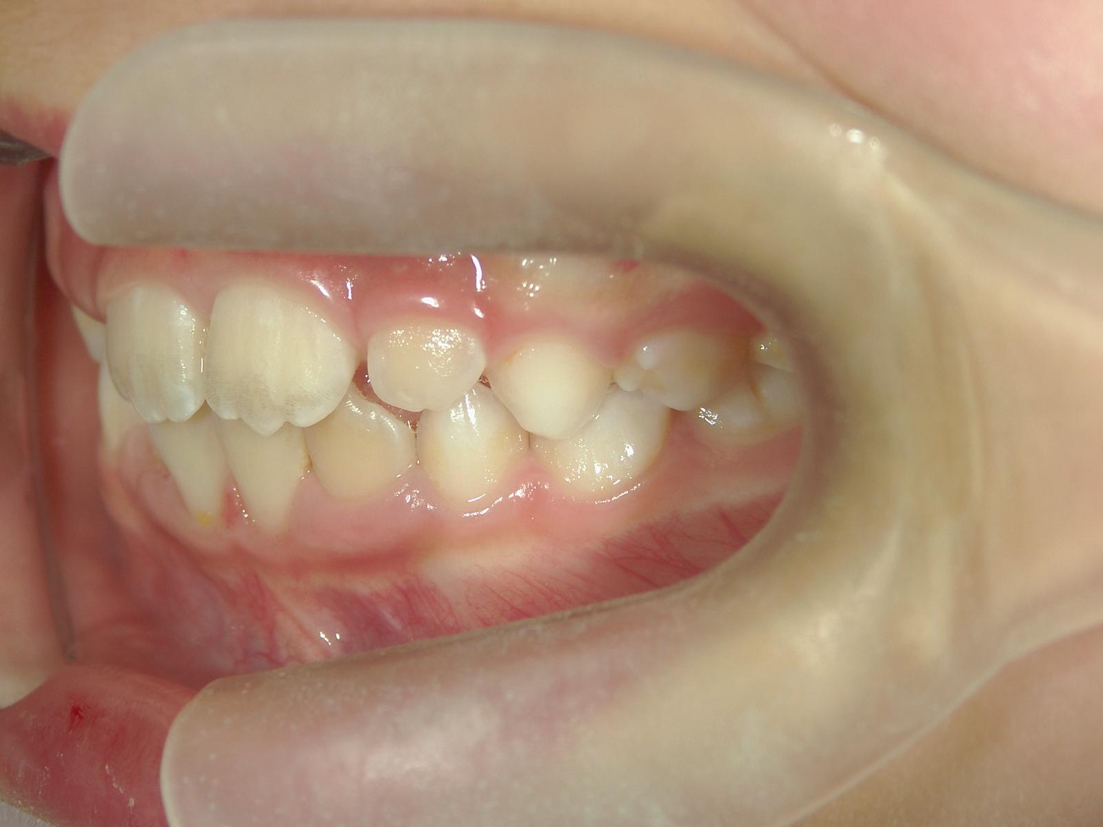 矯正装置 治療例(3)一次矯正症例