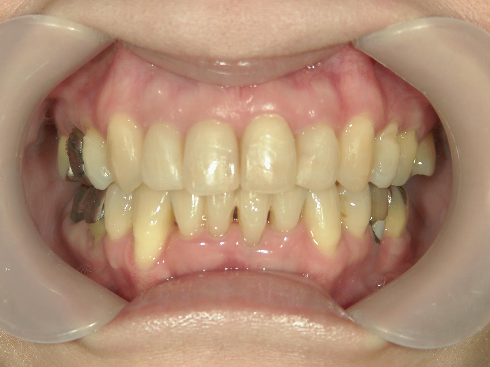 全顎ワイヤー矯正 症例(67)
