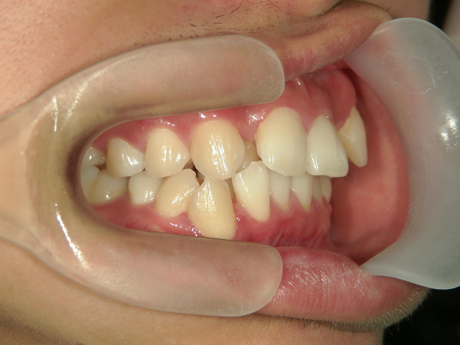 全顎ワイヤー矯正 症例(66)