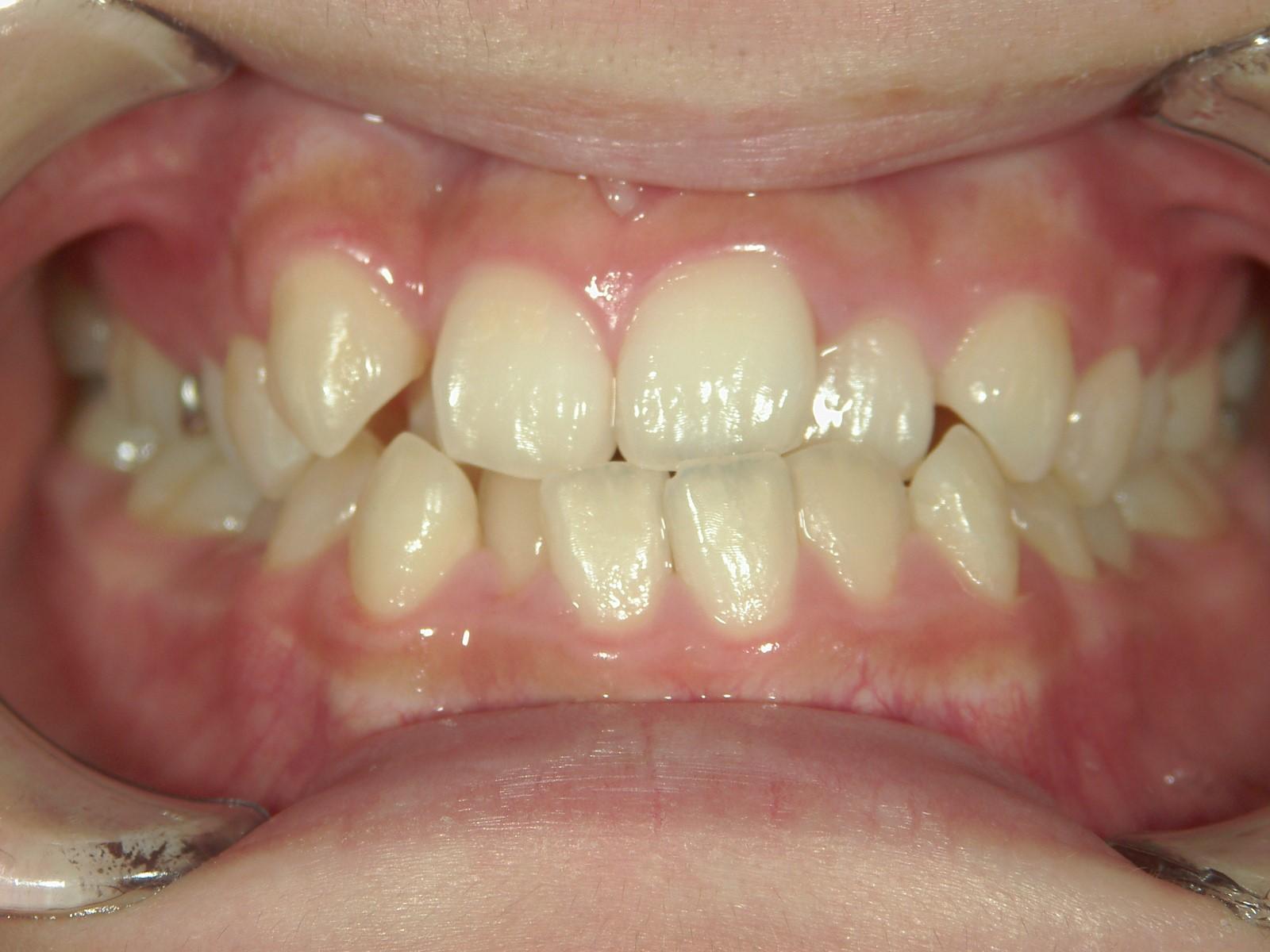 非抜歯症例(4)