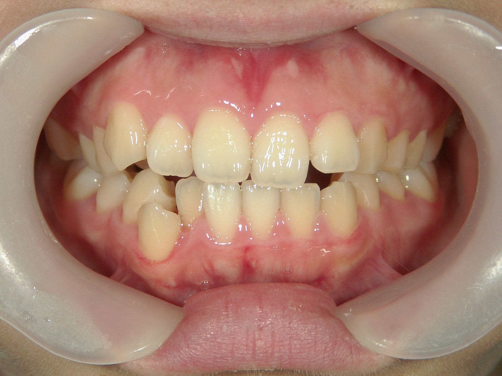 非抜歯症例(5)