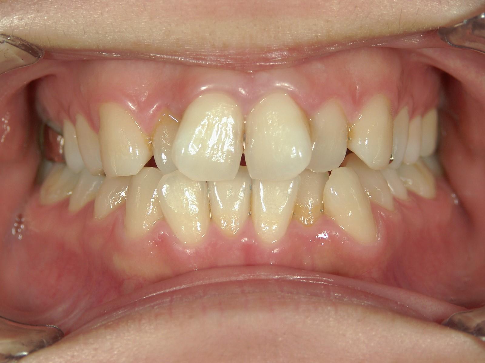 非抜歯症例(6)