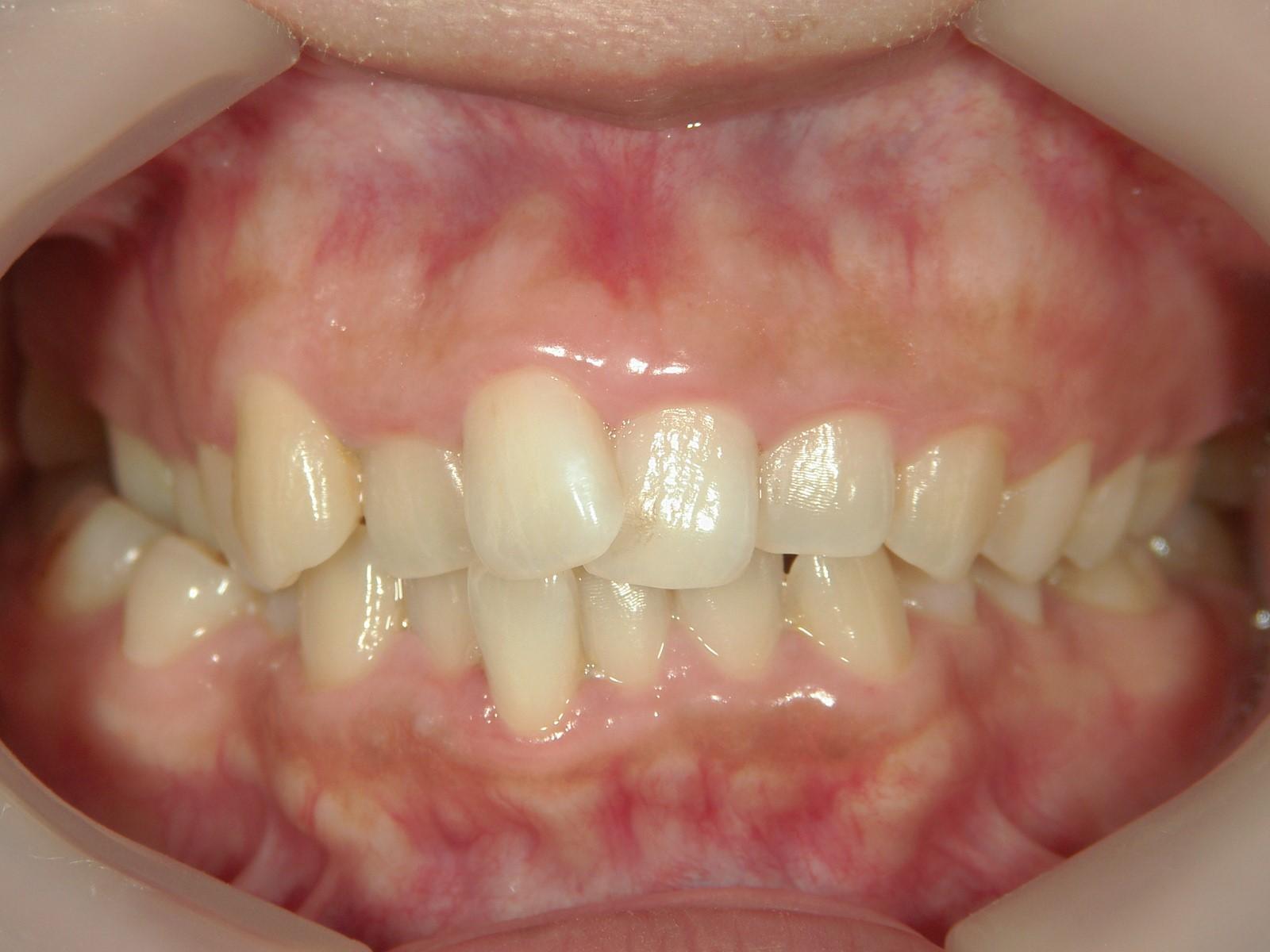 非抜歯症例(7)