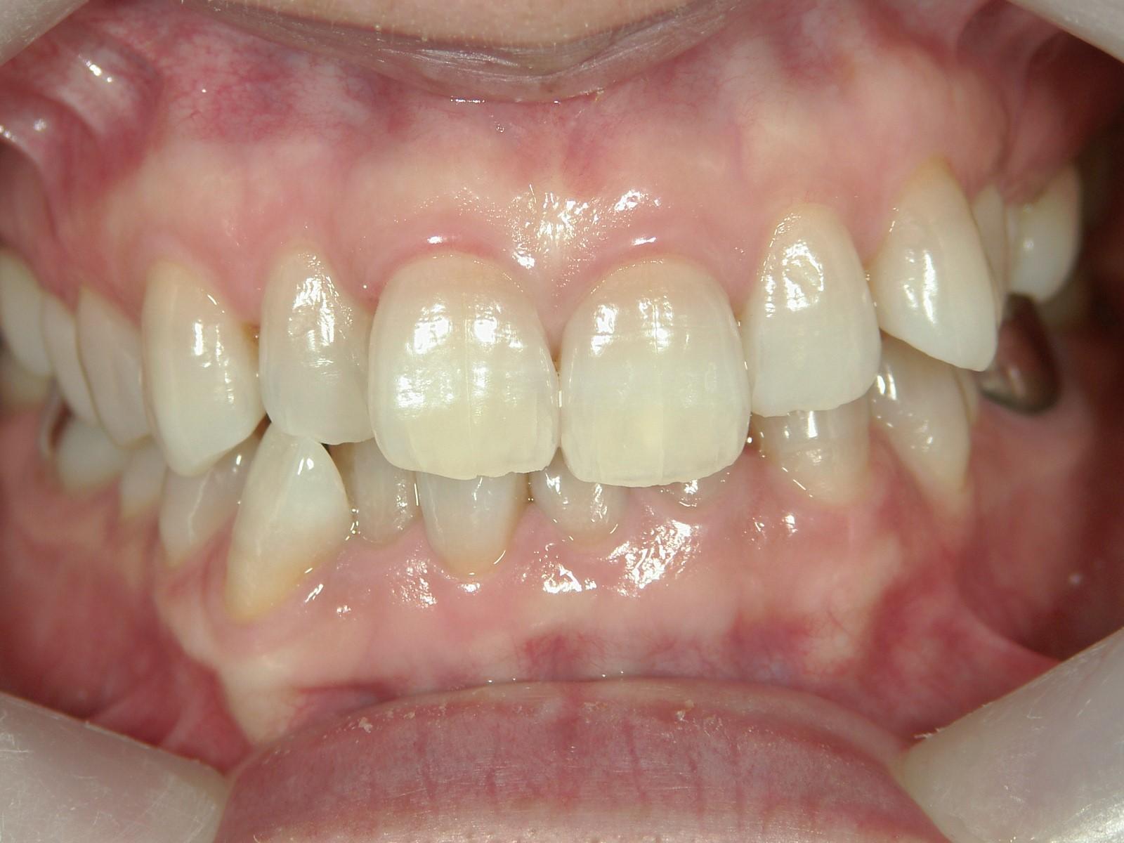 非抜歯症例(12)
