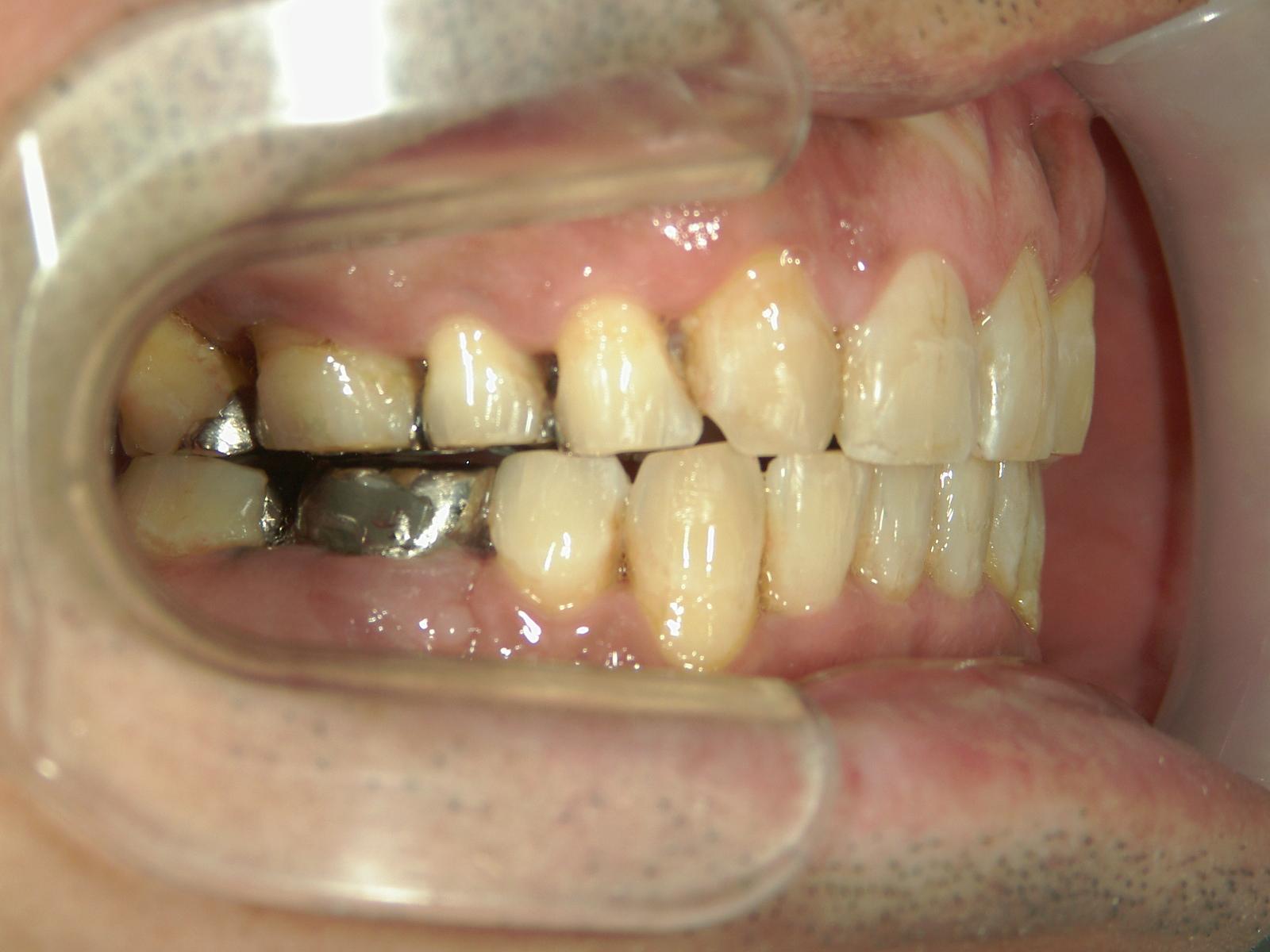 全顎ワイヤー矯正 症例(72)