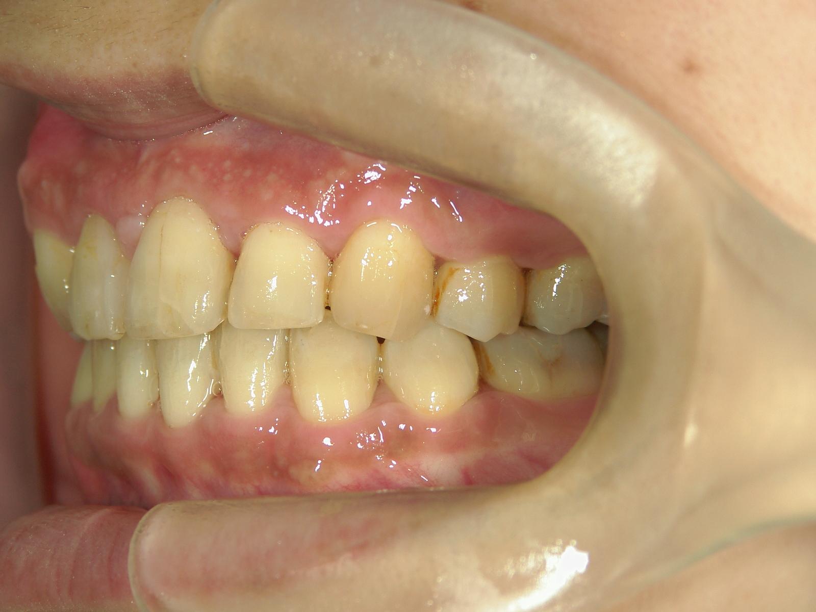 全顎ワイヤー矯正 症例(70)