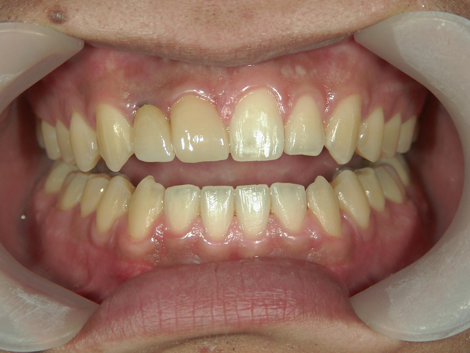 全顎ワイヤー矯正 症例(69)