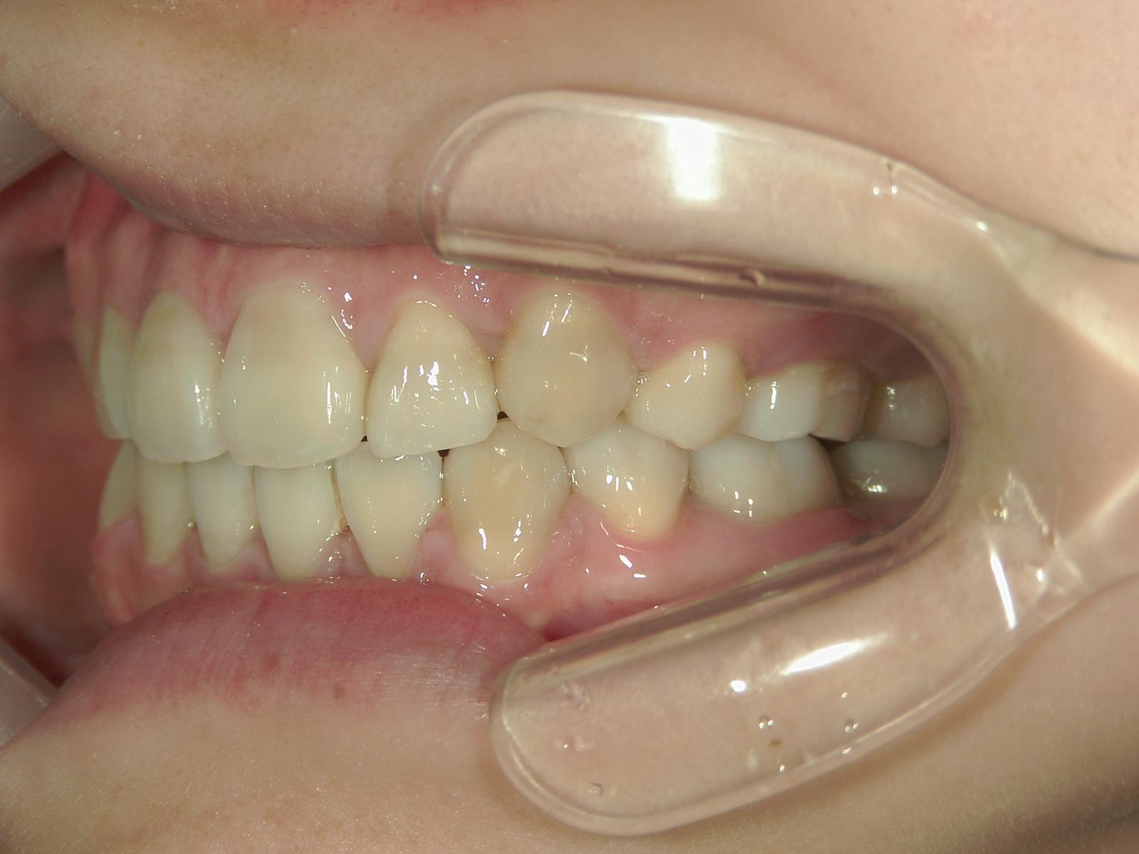 全顎ワイヤー矯正 症例(74)