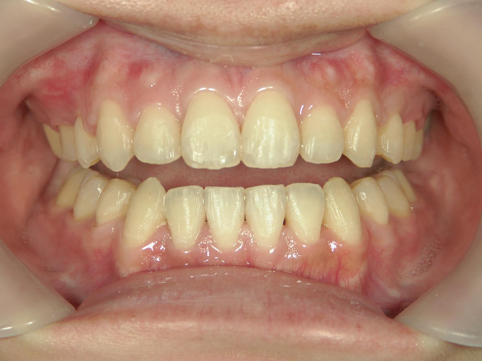 全顎ワイヤー矯正 症例(73)