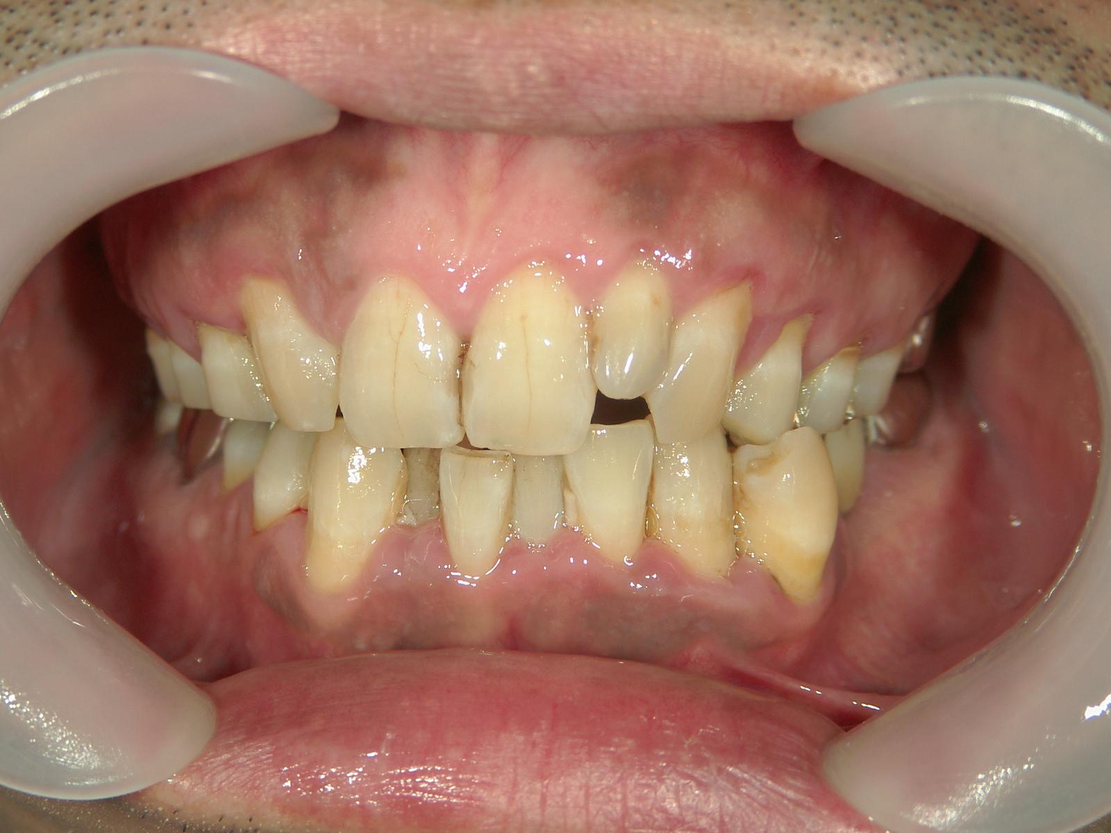 抜歯欠損症例(9)右上前歯1本、左上前歯1本、右下 第二小臼歯1本 抜歯。