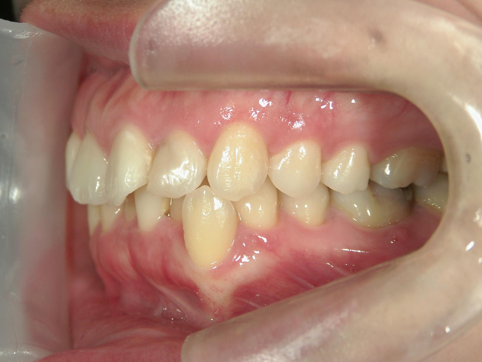舌側ワイヤー矯正 症例(25)