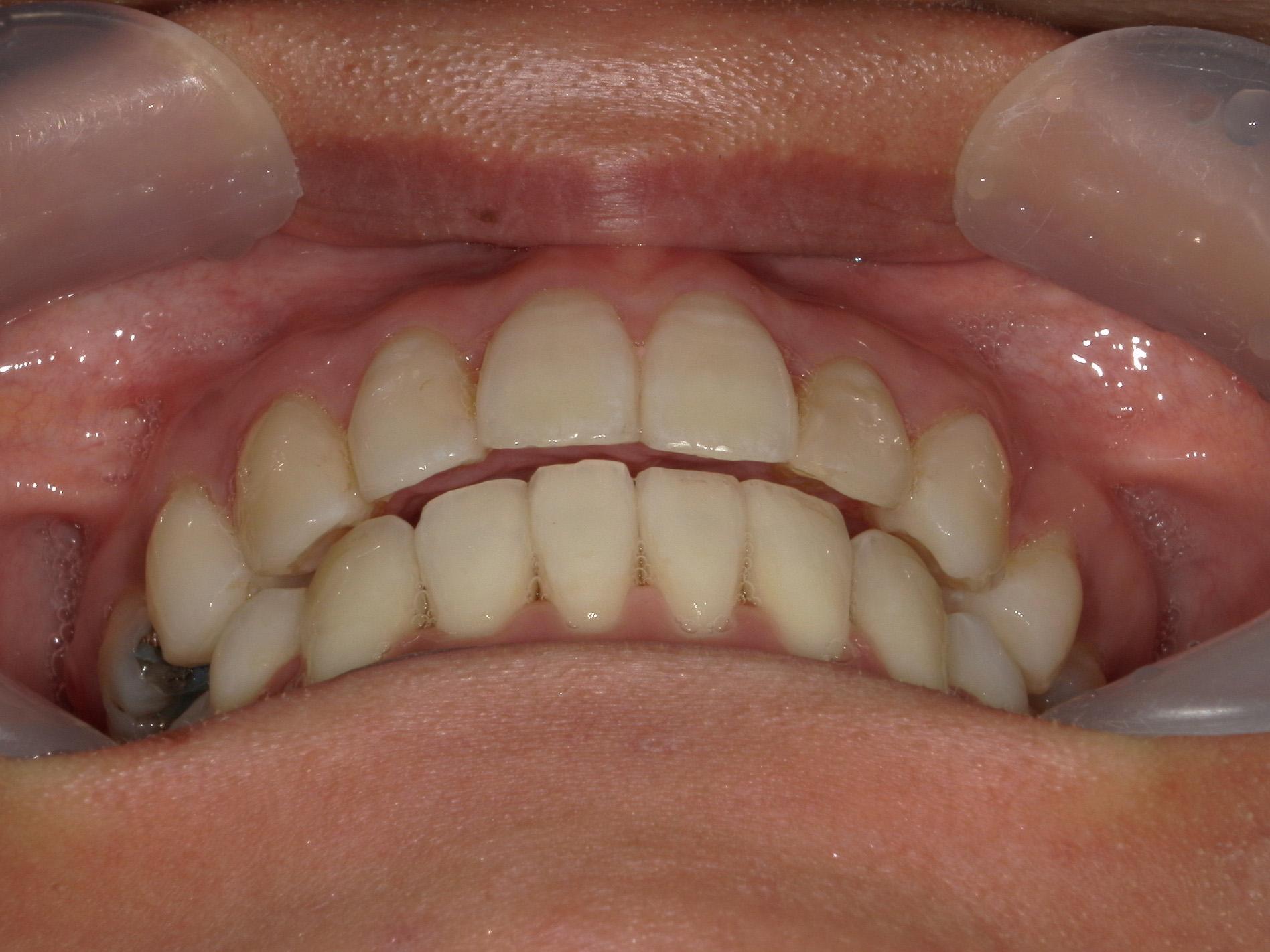 舌側ワイヤー矯正 症例(30)