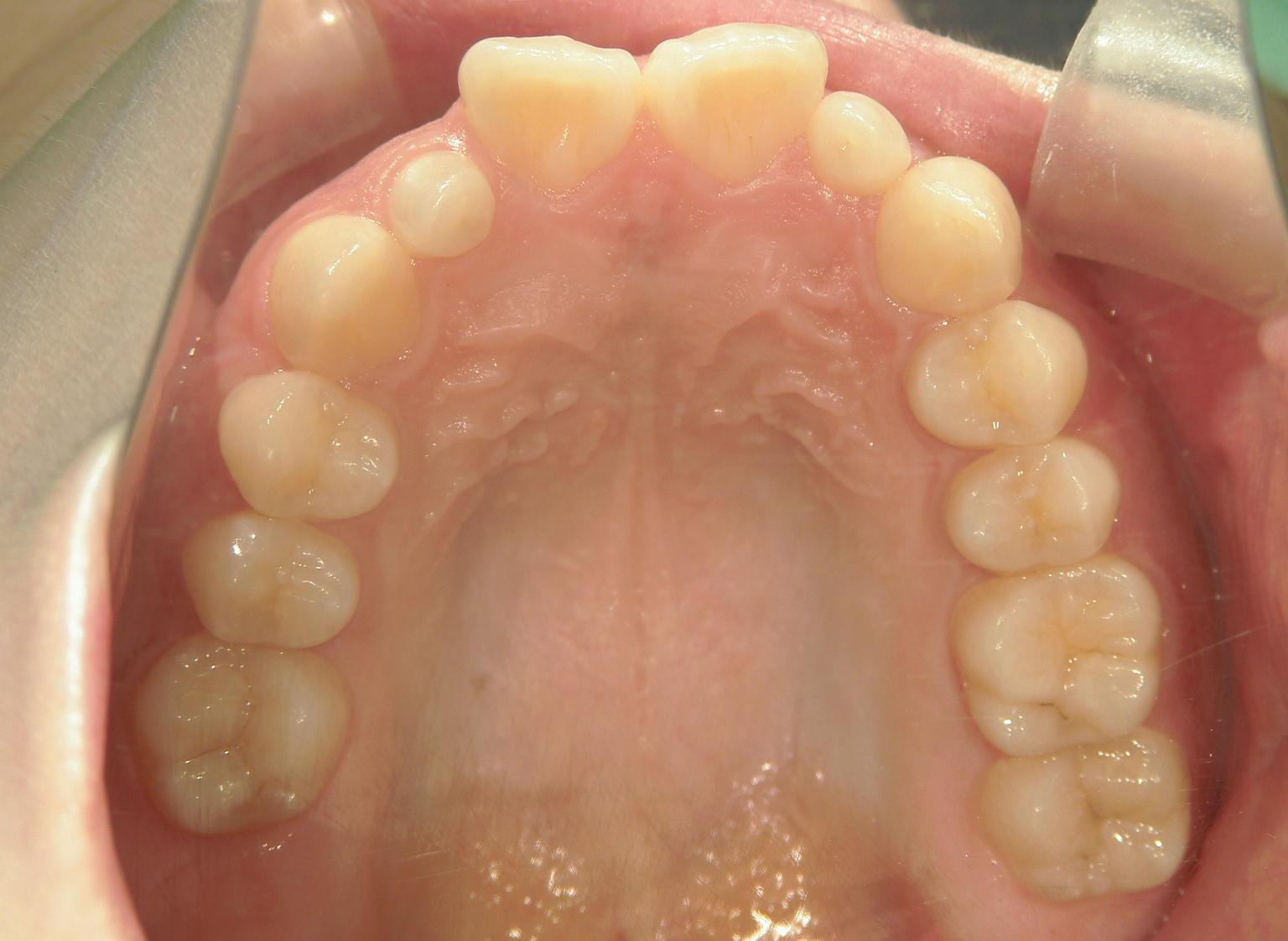 舌側ワイヤー矯正 症例(29)