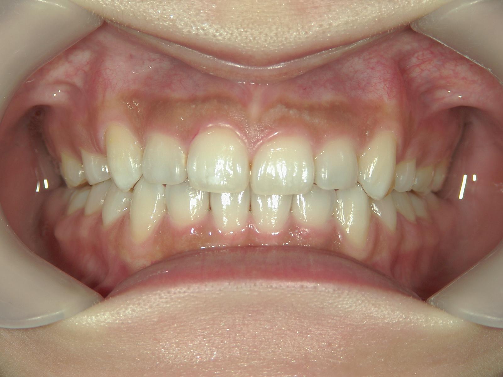 舌側ワイヤー矯正 症例(26)