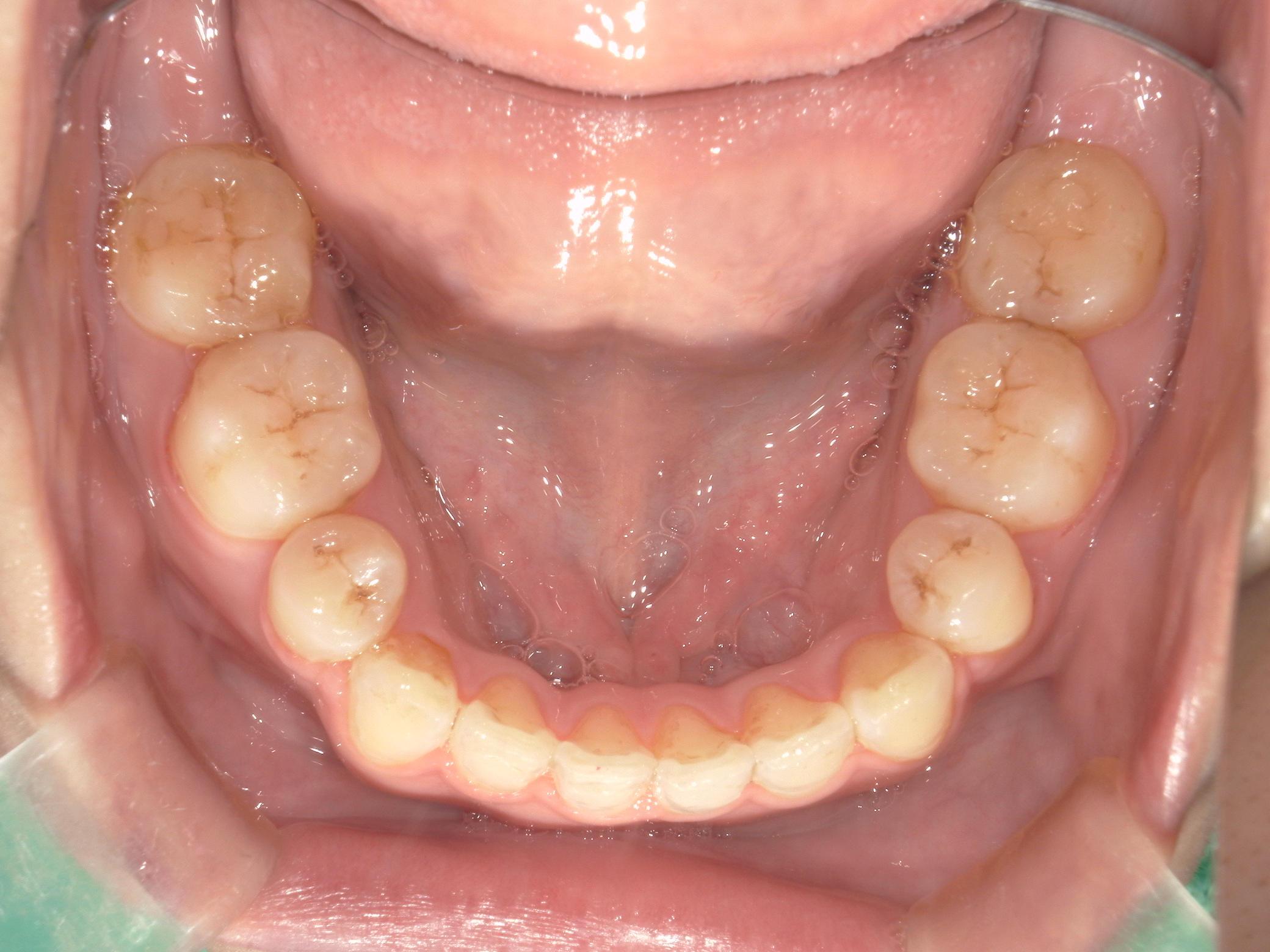 舌側ワイヤー矯正 症例(28)