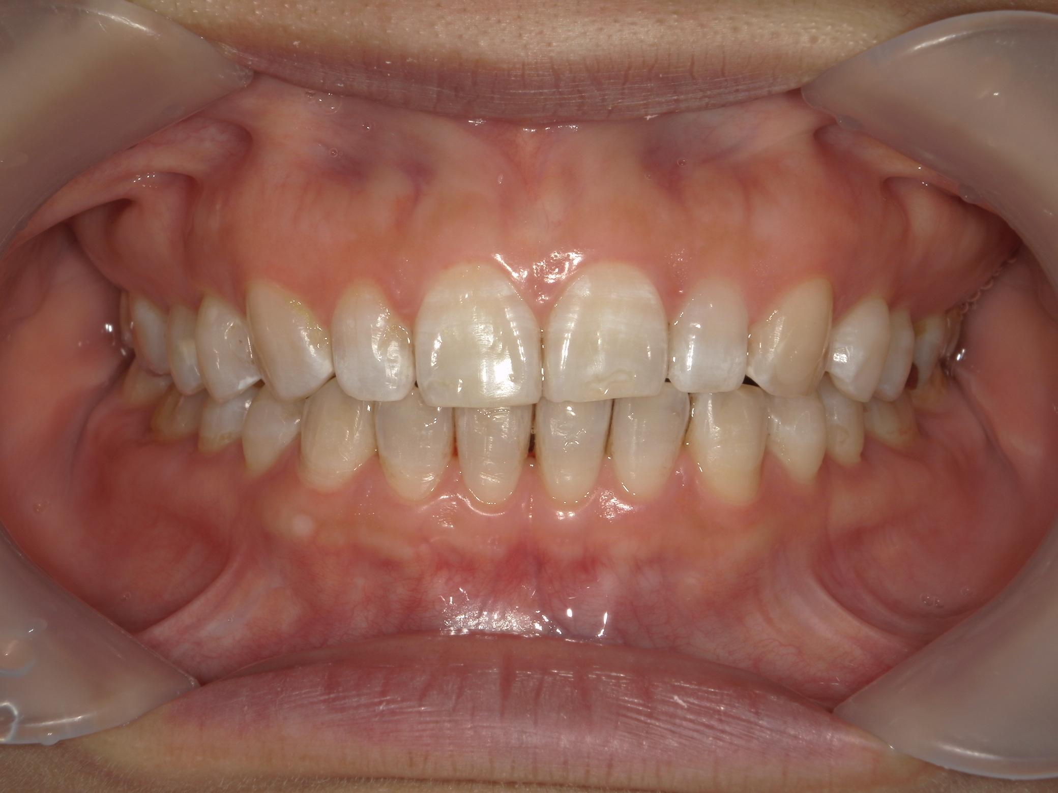 プチ舌側ワイヤー矯正 症例(31)