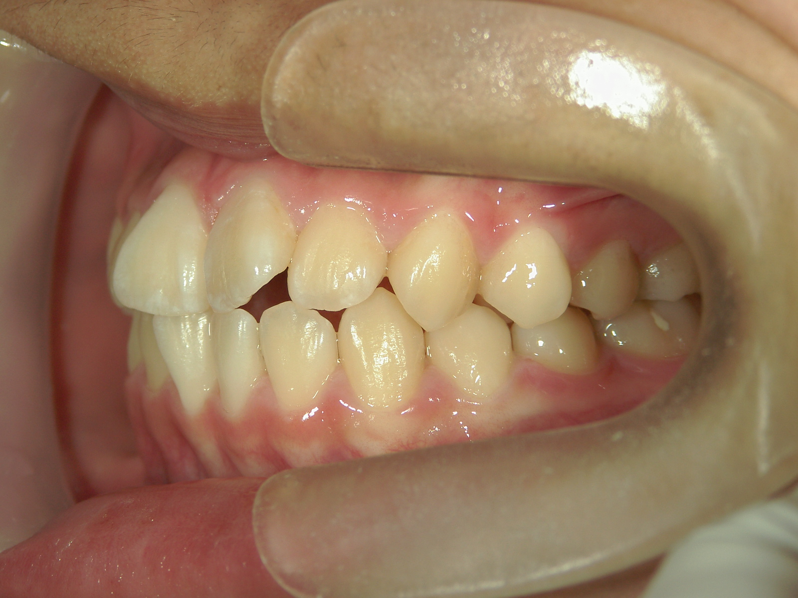 全顎ワイヤー矯正 症例(77)