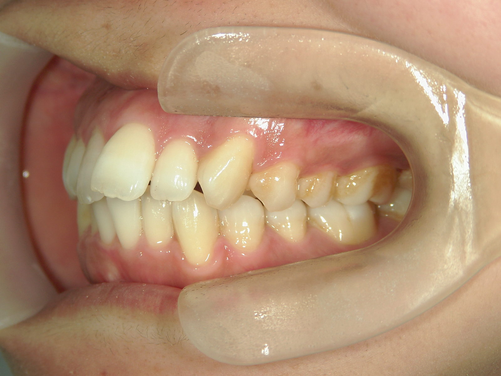 全顎ワイヤー矯正 症例(75)