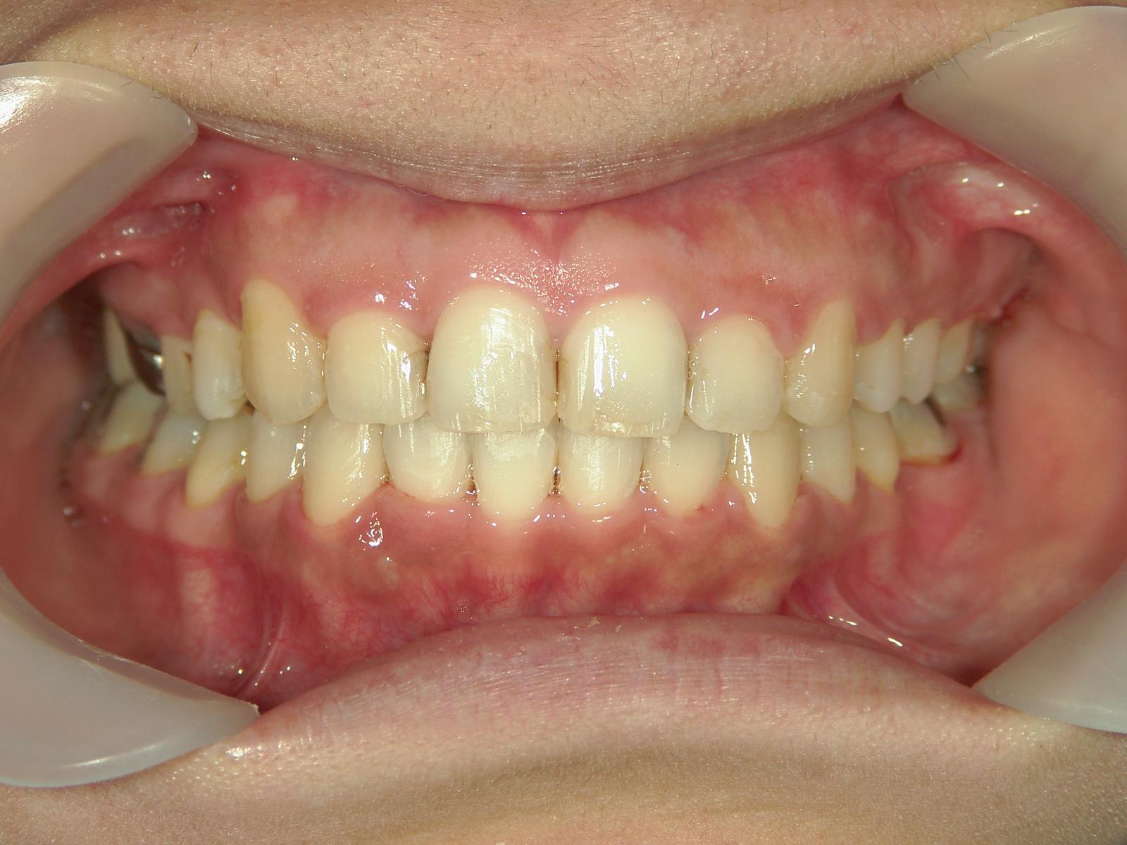 全顎ワイヤー矯正 症例(76)