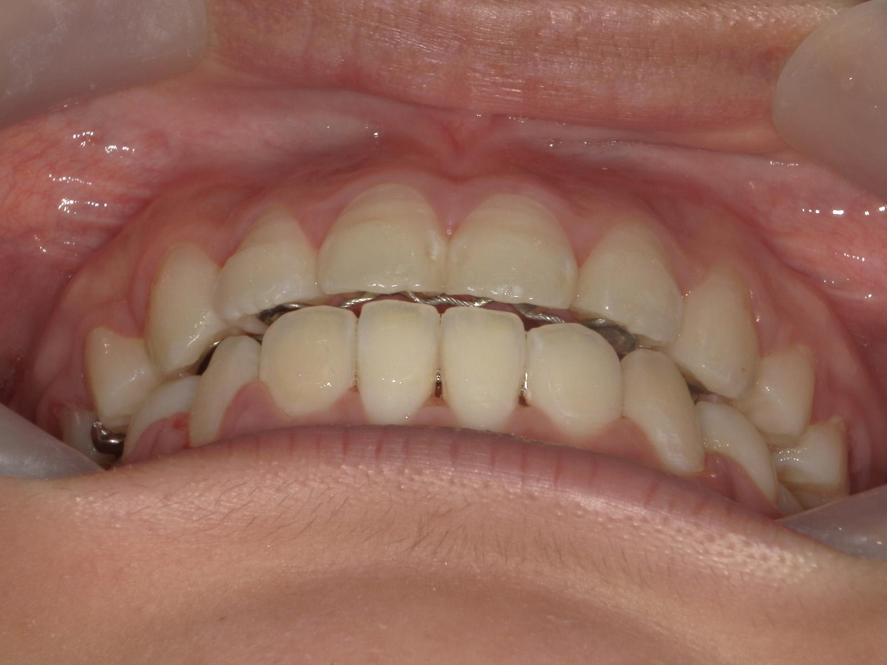 全顎ワイヤー矯正 症例(80)