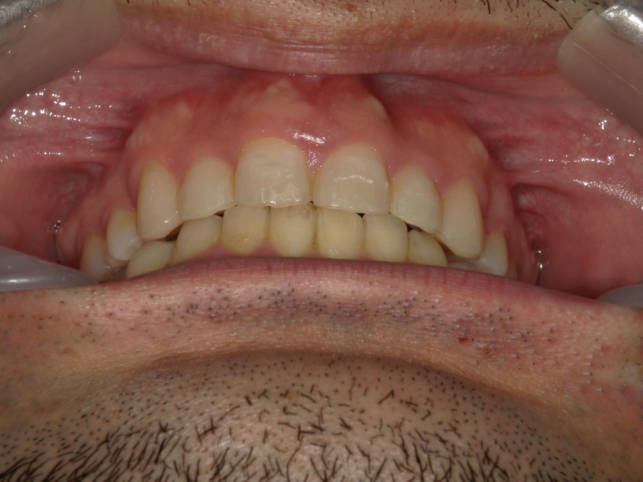 全顎ワイヤー矯正 症例(79)