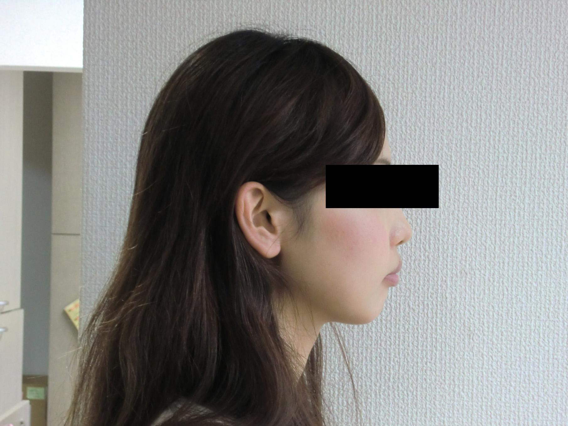 症例(15)