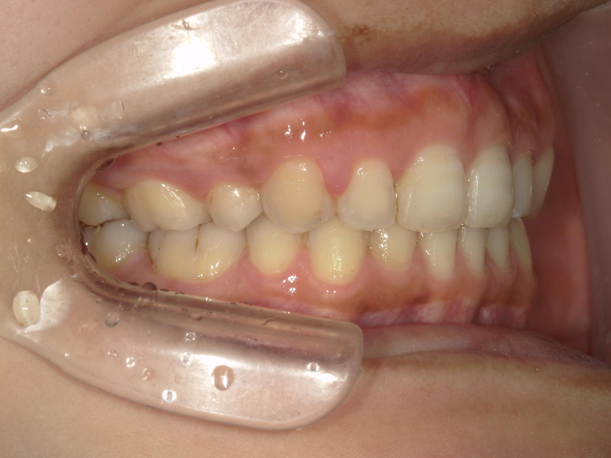 全顎ワイヤー矯正 症例(81)