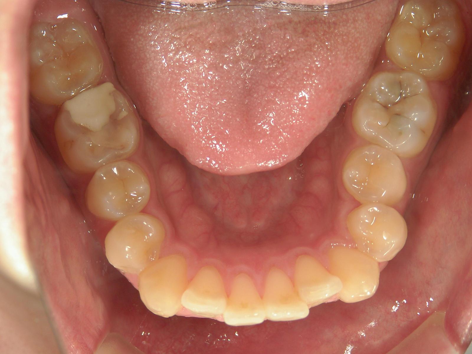 全顎ワイヤー矯正 症例(84)
