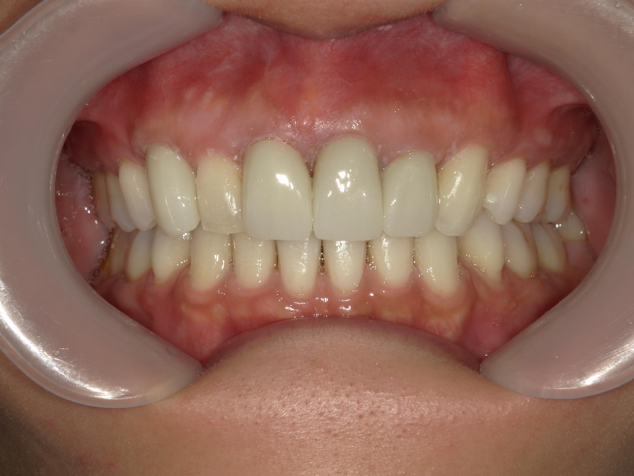 全顎ワイヤー矯正 症例(82)